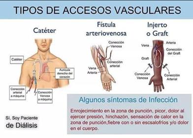 ¿Qué son los accesos vasculares en el paciente renal?